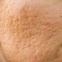 Tratamiento para tratar las cicatrices atróficas