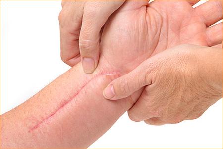 Tratamento Profade para peles com cicatrizes.