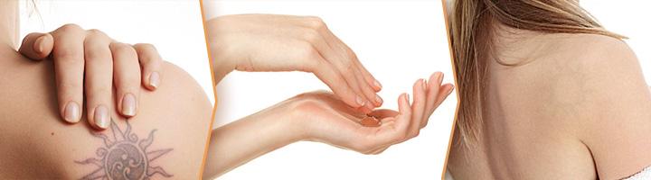 Gel regenerador para peles com cicatrizes ou para eliminar tatuagens.