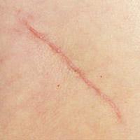 Recomendado para cicatrizes hipertróficas
