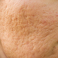 Tratamento para tratar as cicatrizes atróficas