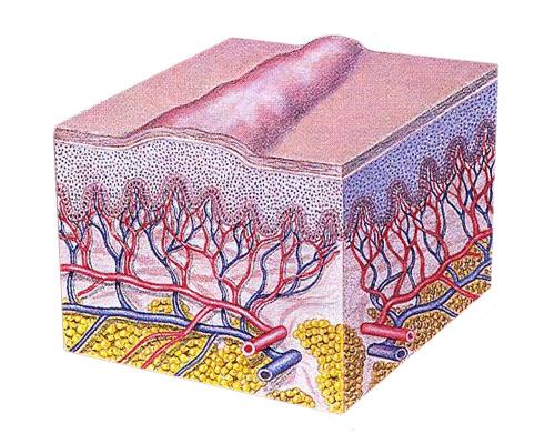 Tratamento de cicatrizes volumosas